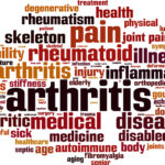 Elder Care in Edison NJ: Exercise and Arthritis