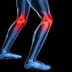 Home Health Care in Elizabeth NJ: Senior Joint Pain